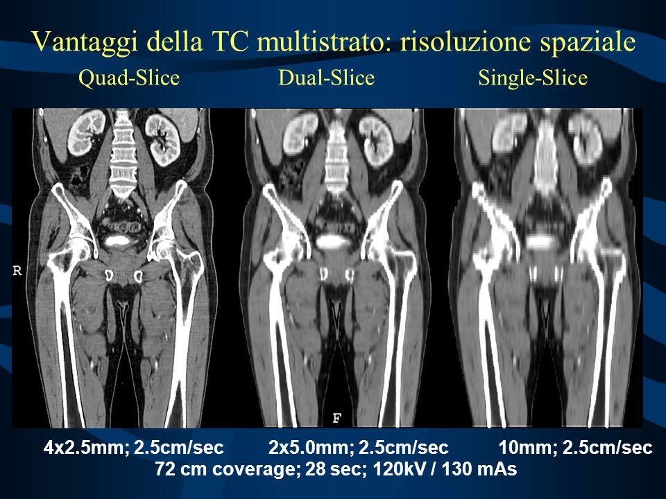 72 cm coverage; 28 sec; 120kV / 130 mAs
