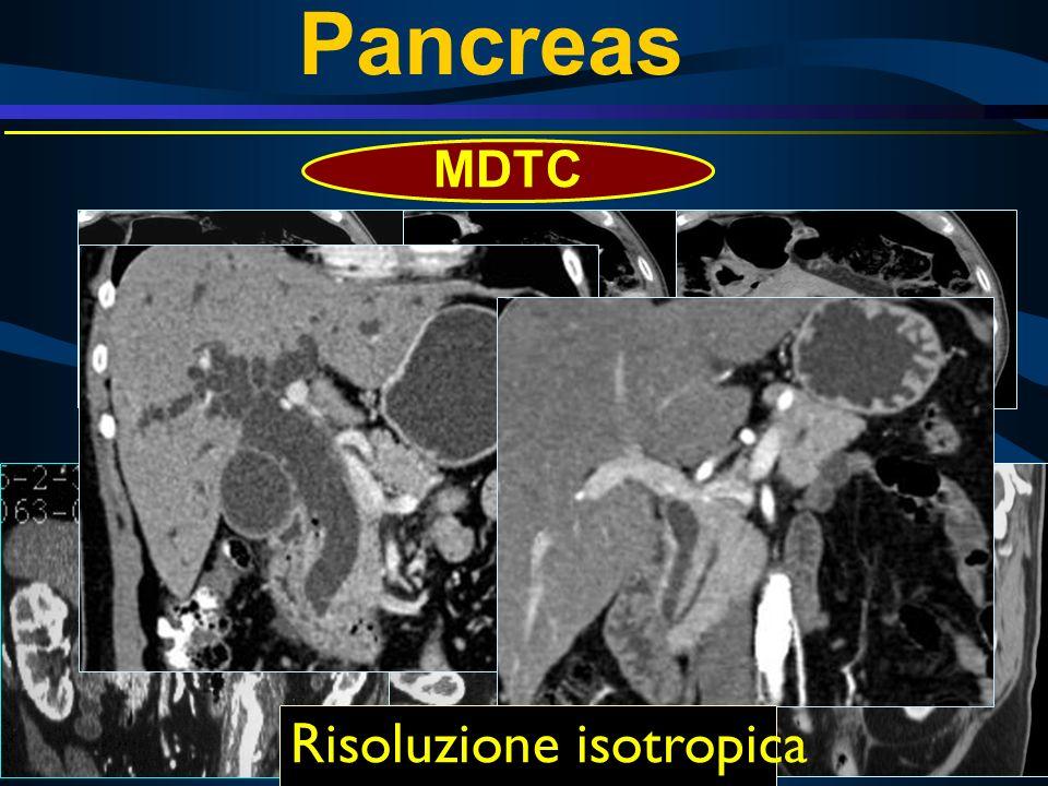 Pancreas MDTC 45 sec 75 sec 5 min Risoluzione isotropica