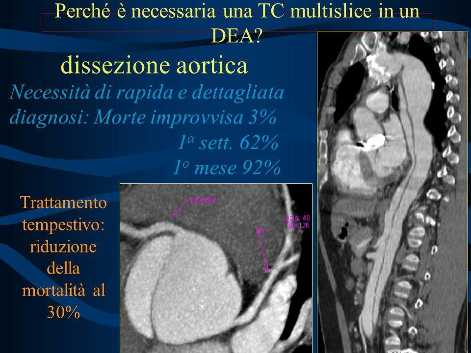 dissezione aortica Perché è necessaria una TC multislice in un DEA