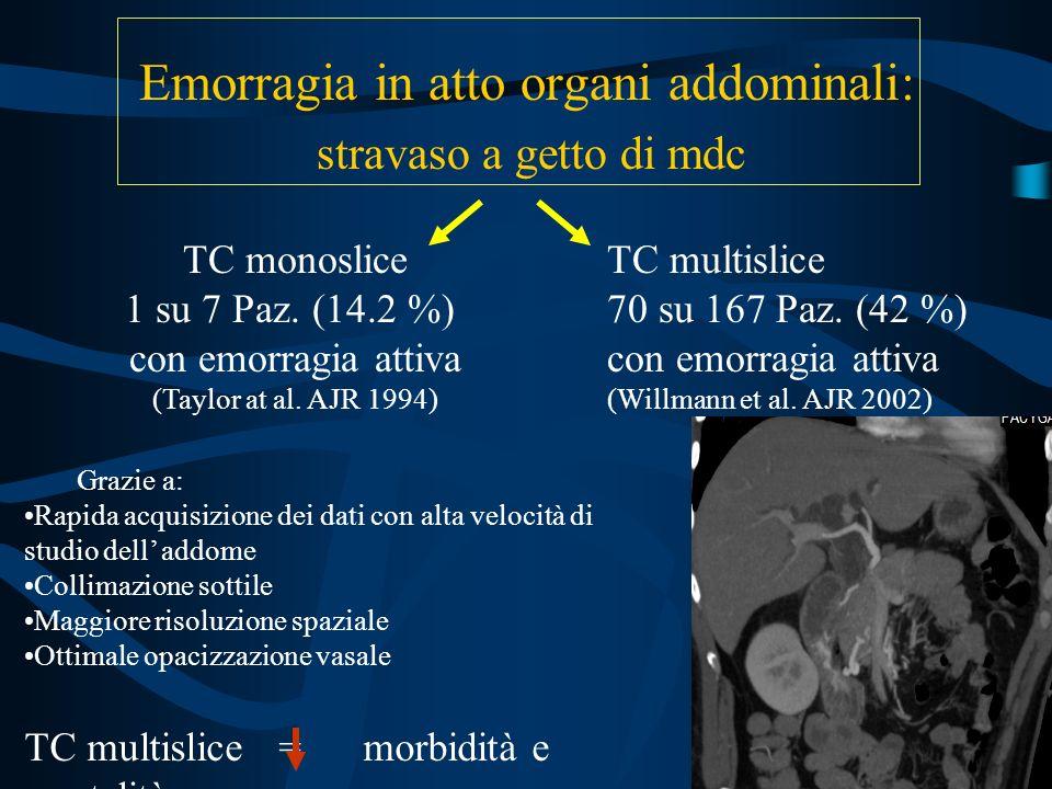 Emorragia in atto organi addominali: stravaso a getto di mdc