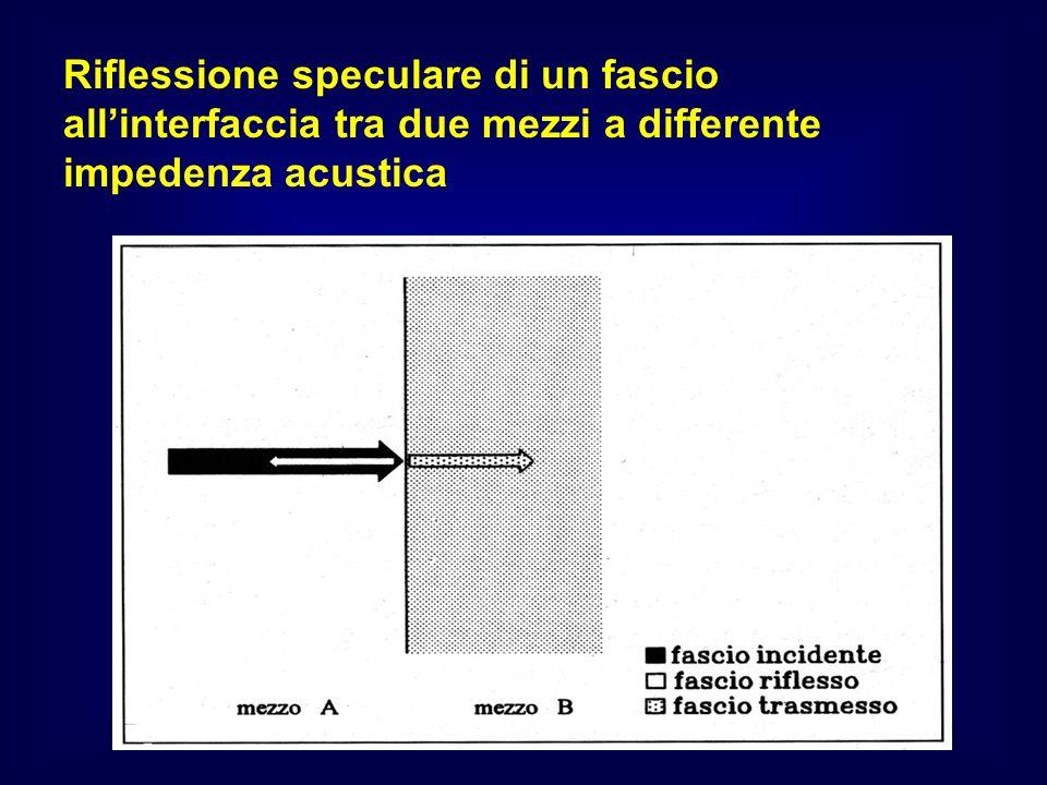 Riflessione speculare di un fascio all'interfaccia tra due mezzi a differente impedenza acustica