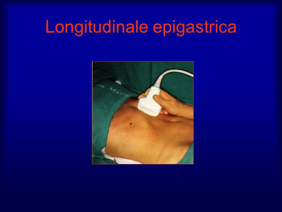 Longitudinale epigastrica