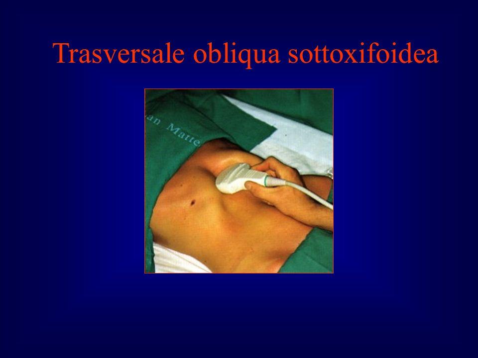 Trasversale obliqua sottoxifoidea