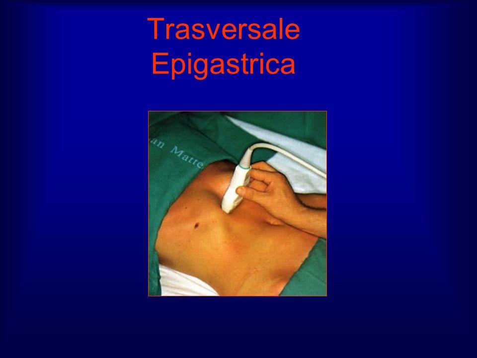 Trasversale Epigastrica