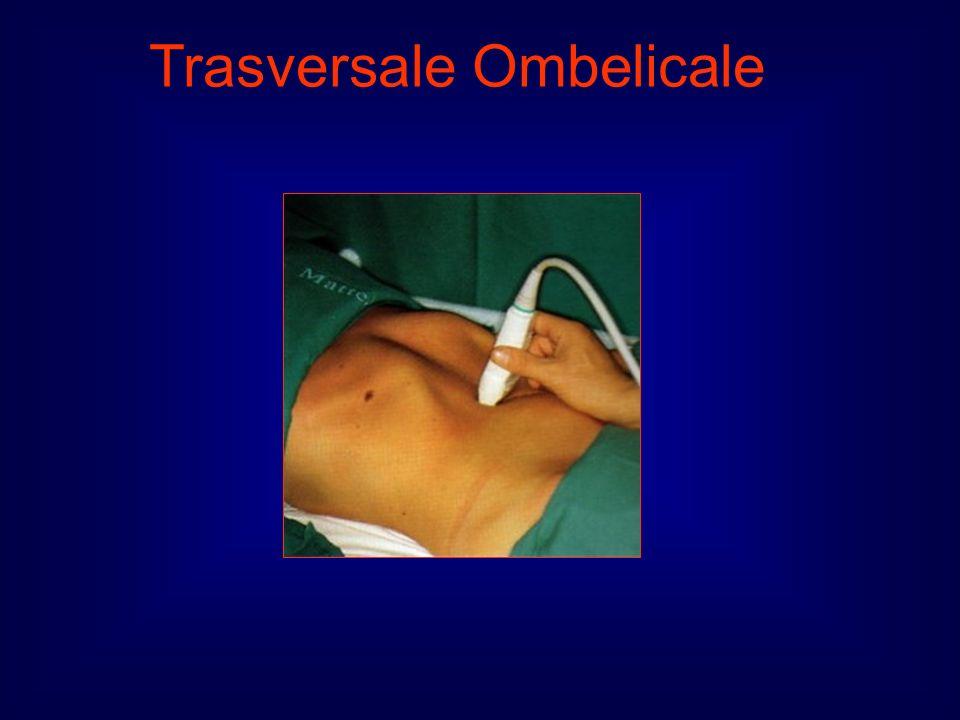 Trasversale Ombelicale