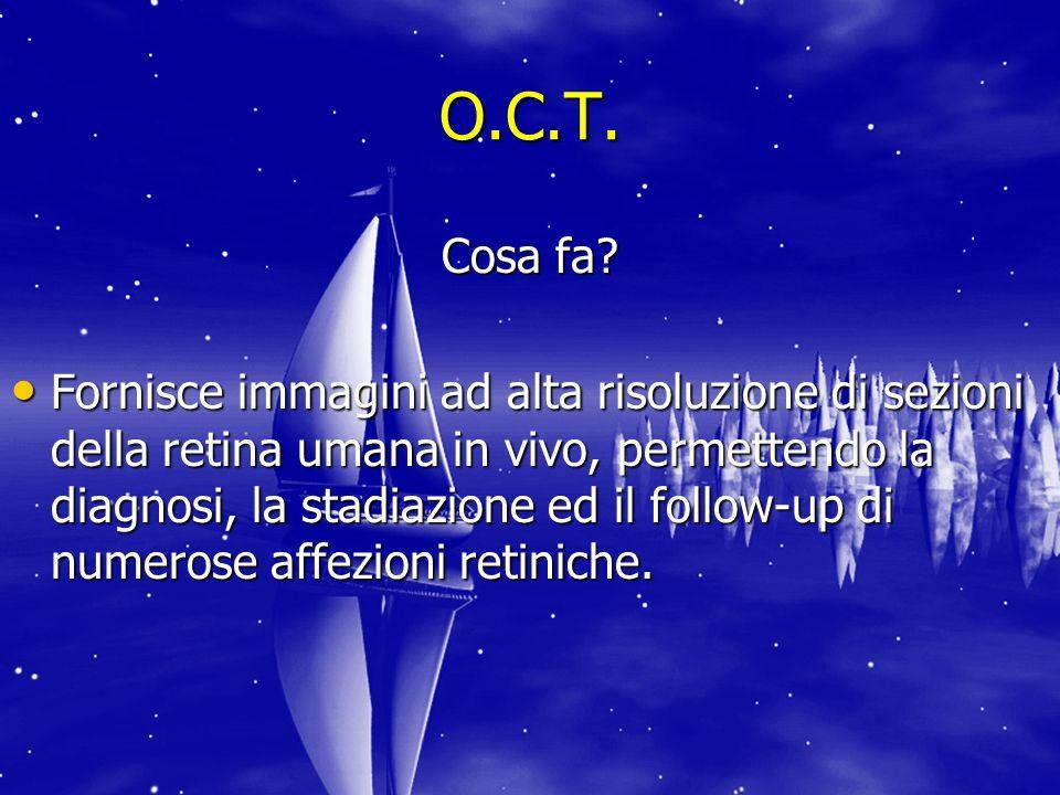 O.C.T. Cosa fa