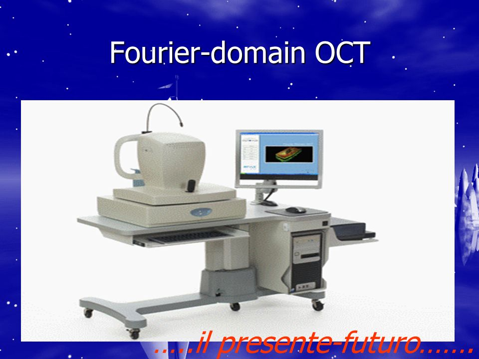 Fourier-domain OCT …..il presente-futuro…….
