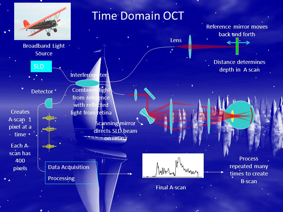 Time Domain OCT SLD Reference mirror moves back and forth Lens