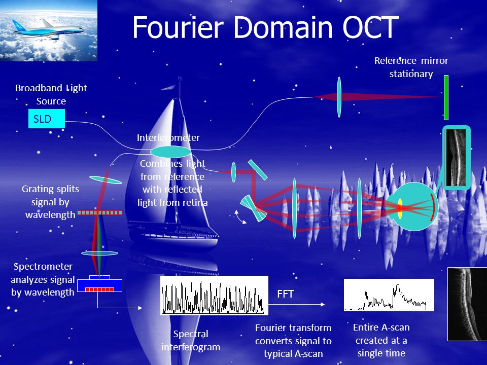 Fourier Domain OCT SLD FFT Reference mirror stationary