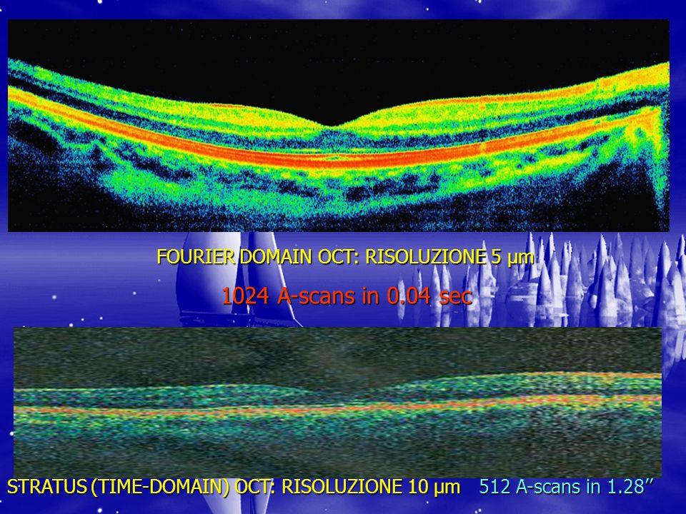 FOURIER DOMAIN OCT: RISOLUZIONE 5 µm