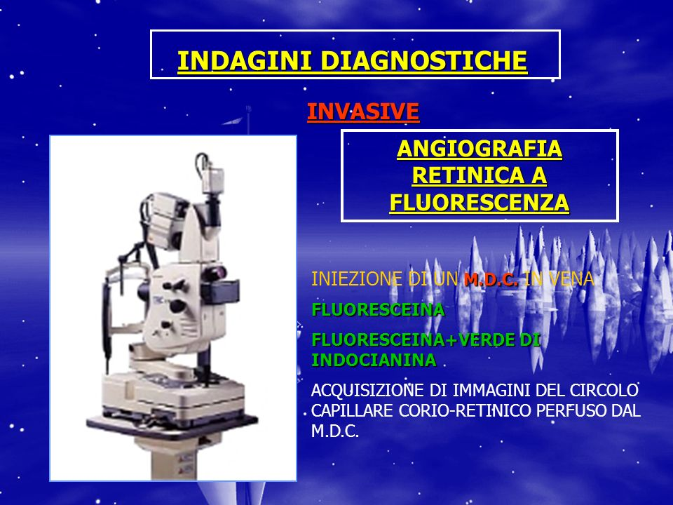 INDAGINI DIAGNOSTICHE ANGIOGRAFIA RETINICA A FLUORESCENZA
