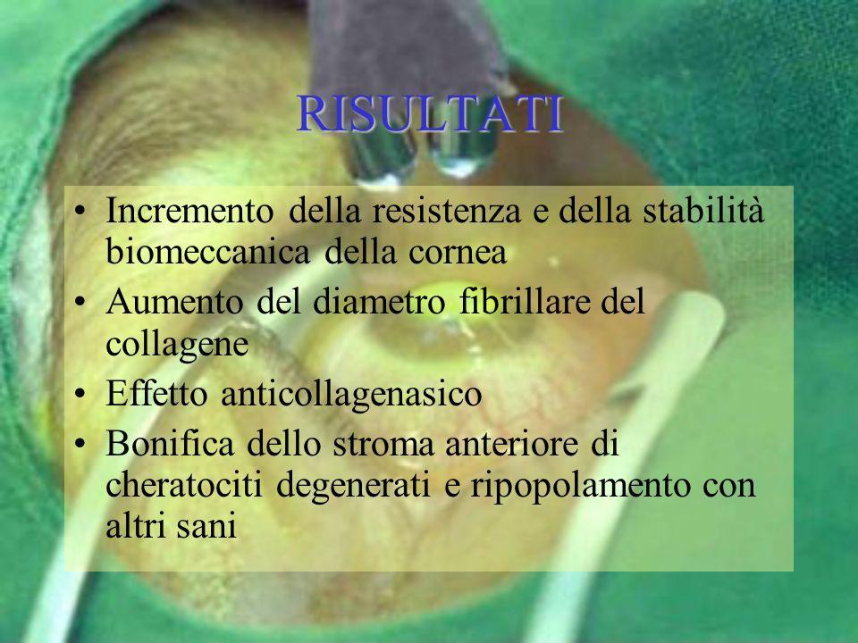 RISULTATI Incremento della resistenza e della stabilità biomeccanica della cornea. Aumento del diametro fibrillare del collagene.