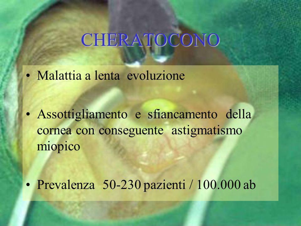 CHERATOCONO Malattia a lenta evoluzione
