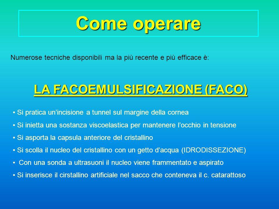 LA FACOEMULSIFICAZIONE (FACO)