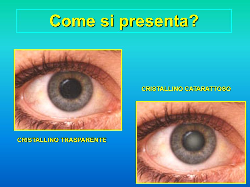 Come si presenta CRISTALLINO CATARATTOSO CRISTALLINO TRASPARENTE