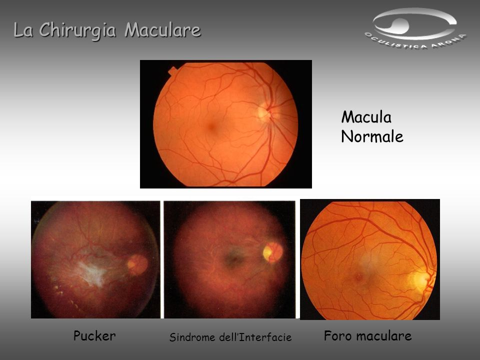 La Chirurgia Maculare Macula Normale Pucker Foro maculare