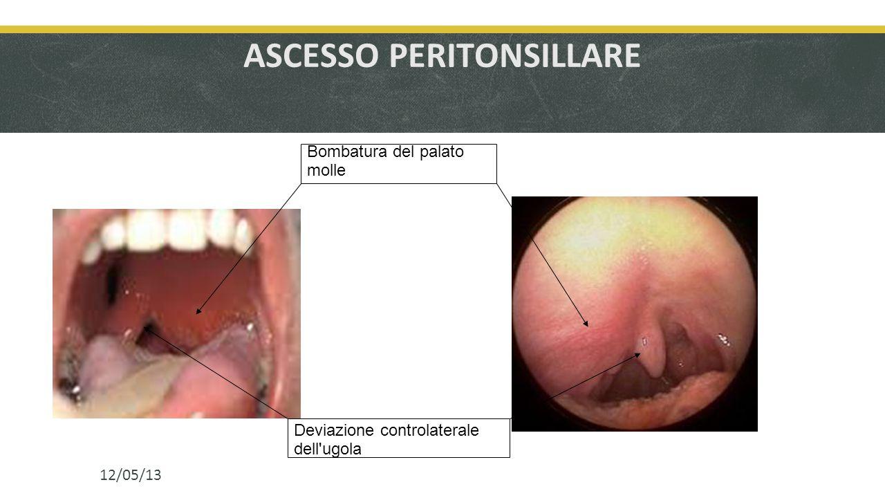 ASCESSO PERITONSILLARE