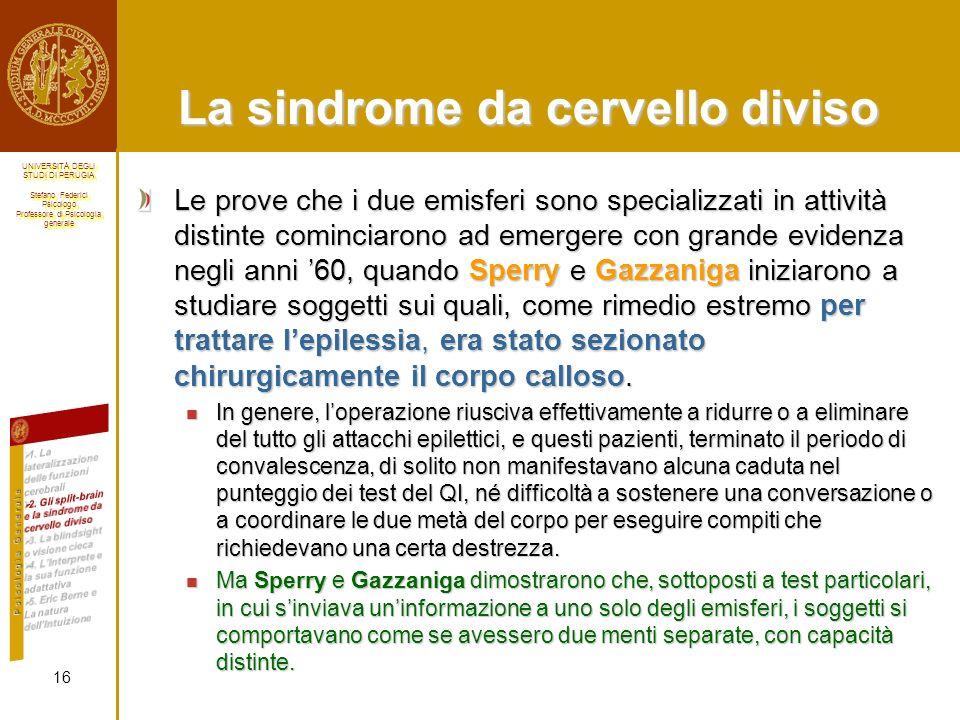 La sindrome da cervello diviso