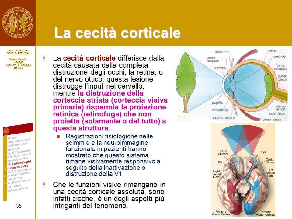 La cecità corticale