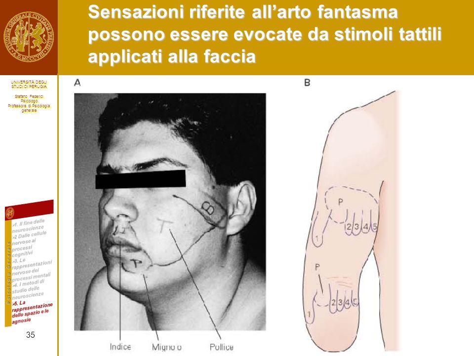 Sensazioni riferite all'arto fantasma possono essere evocate da stimoli tattili applicati alla faccia