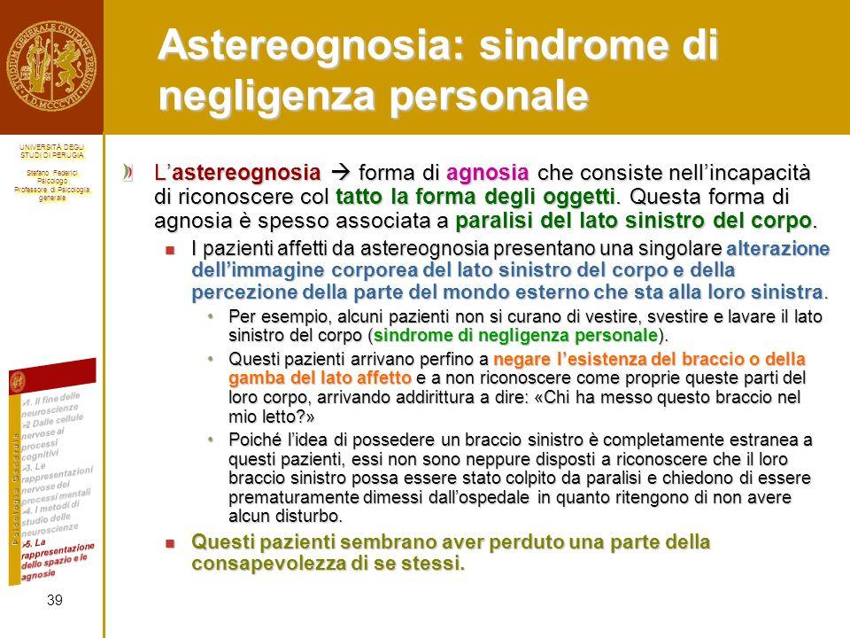 Astereognosia: sindrome di negligenza personale