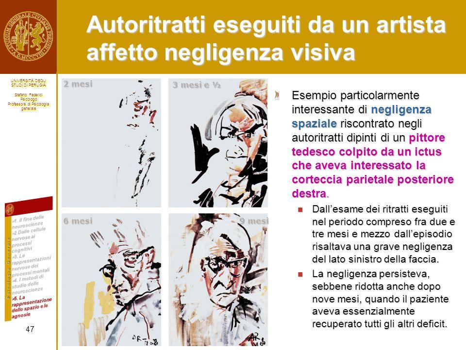 Autoritratti eseguiti da un artista affetto negligenza visiva