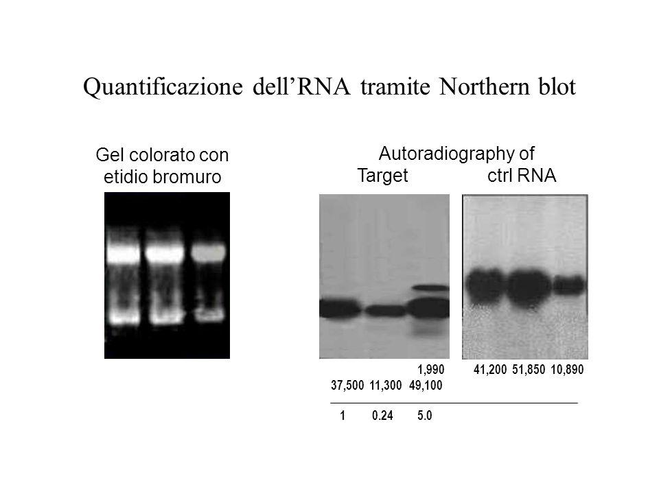 Quantificazione dell'RNA tramite Northern blot