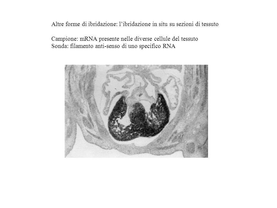 Altre forme di ibridazione: l'ibridazione in situ su sezioni di tessuto