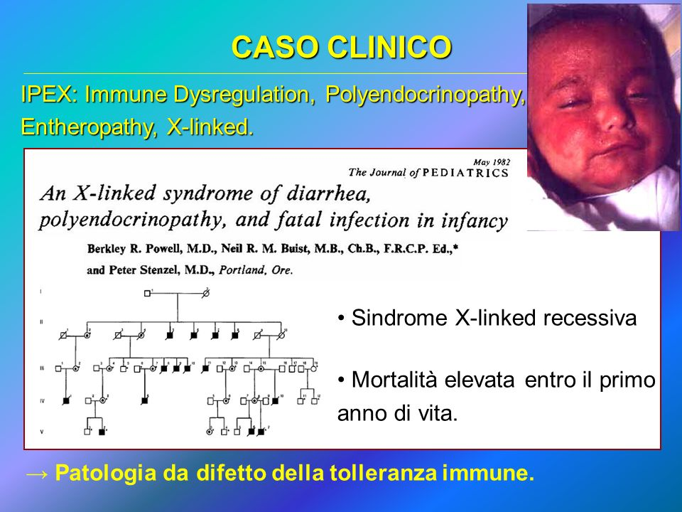 CASO CLINICO IPEX: Immune Dysregulation, Polyendocrinopathy, Entheropathy, X-linked. Sindrome X-linked recessiva.