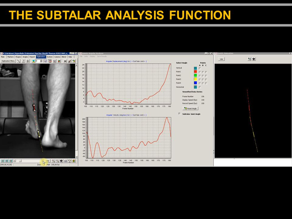 THE SUBTALAR ANALYSIS FUNCTION
