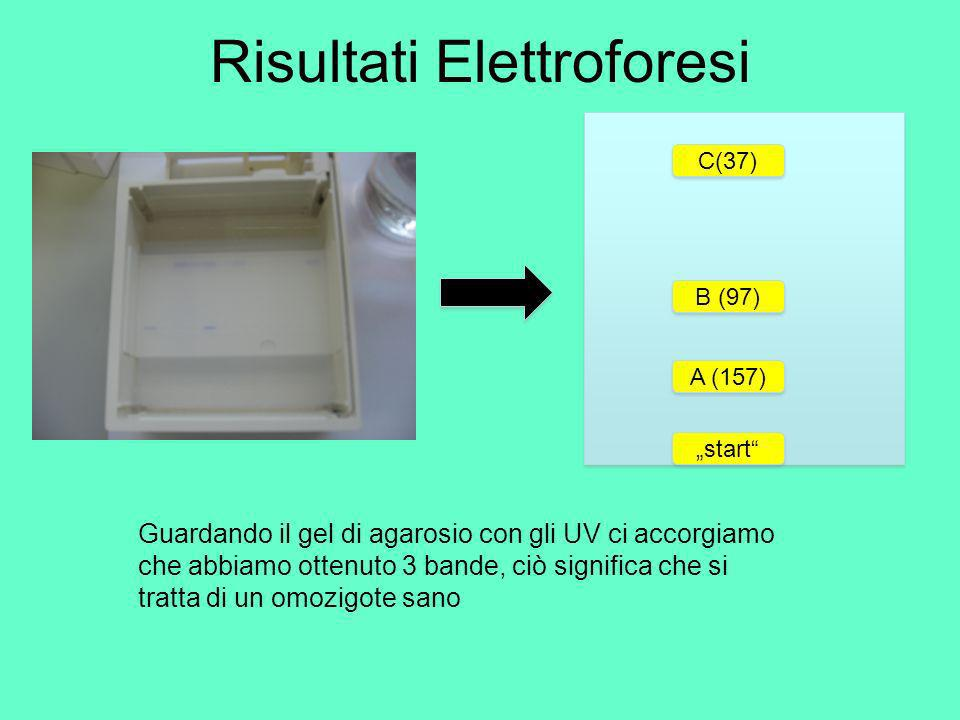 Risultati Elettroforesi