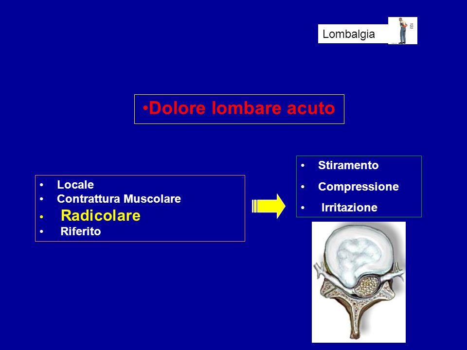Dolore lombare acuto Lombalgia Stiramento Compressione Irritazione