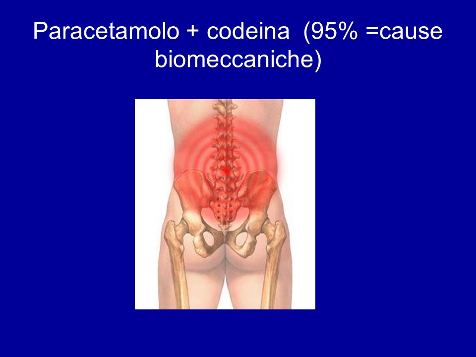 Paracetamolo + codeina (95% =cause biomeccaniche)