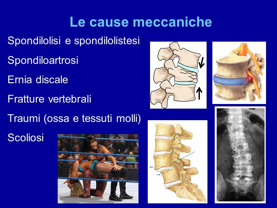 Le cause meccaniche Spondilolisi e spondilolistesi Spondiloartrosi