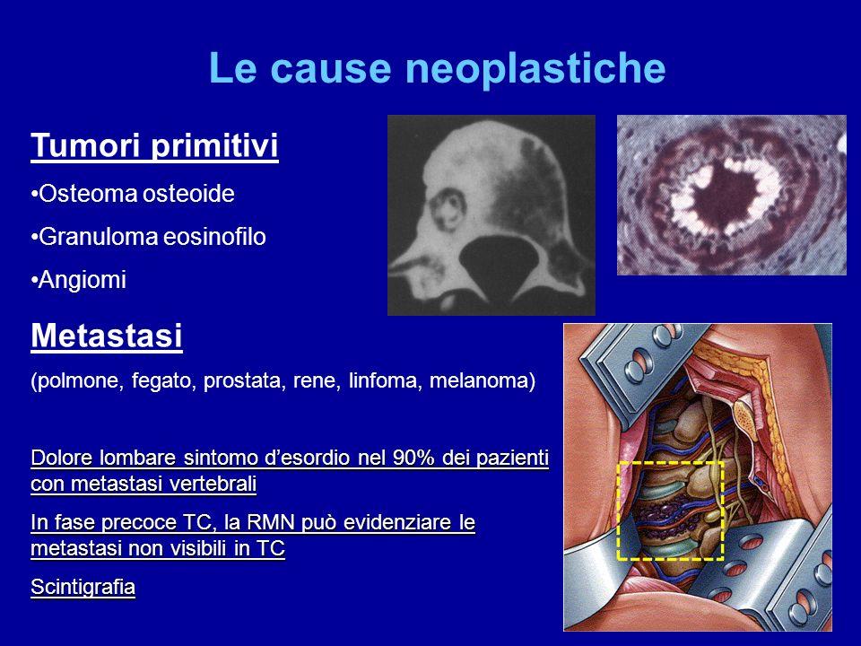 Le cause neoplastiche Tumori primitivi Metastasi Osteoma osteoide