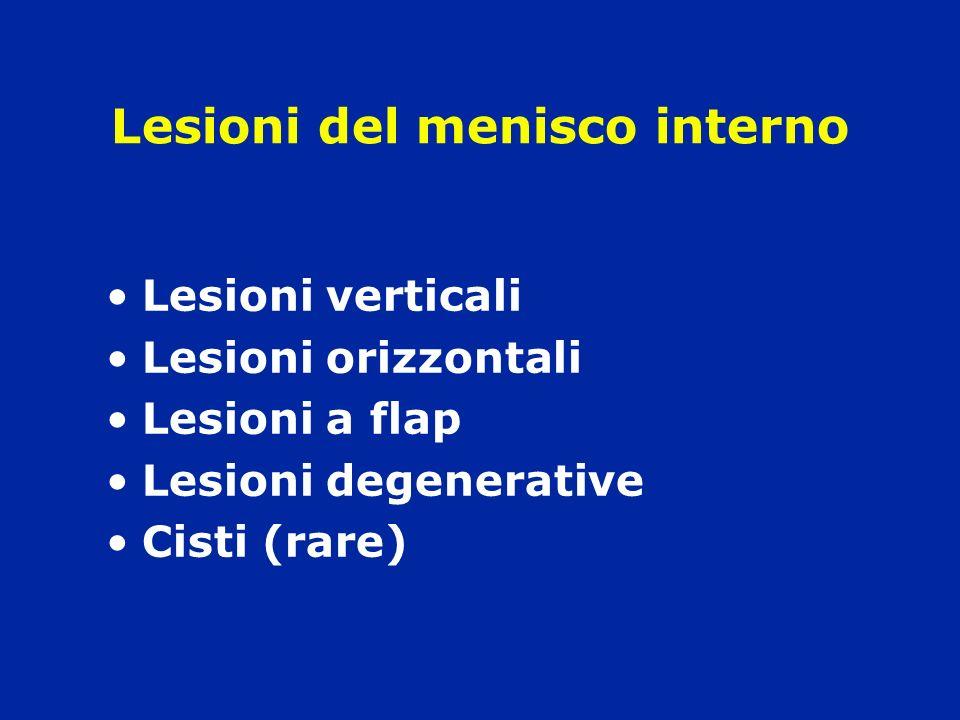 Lesioni del menisco interno