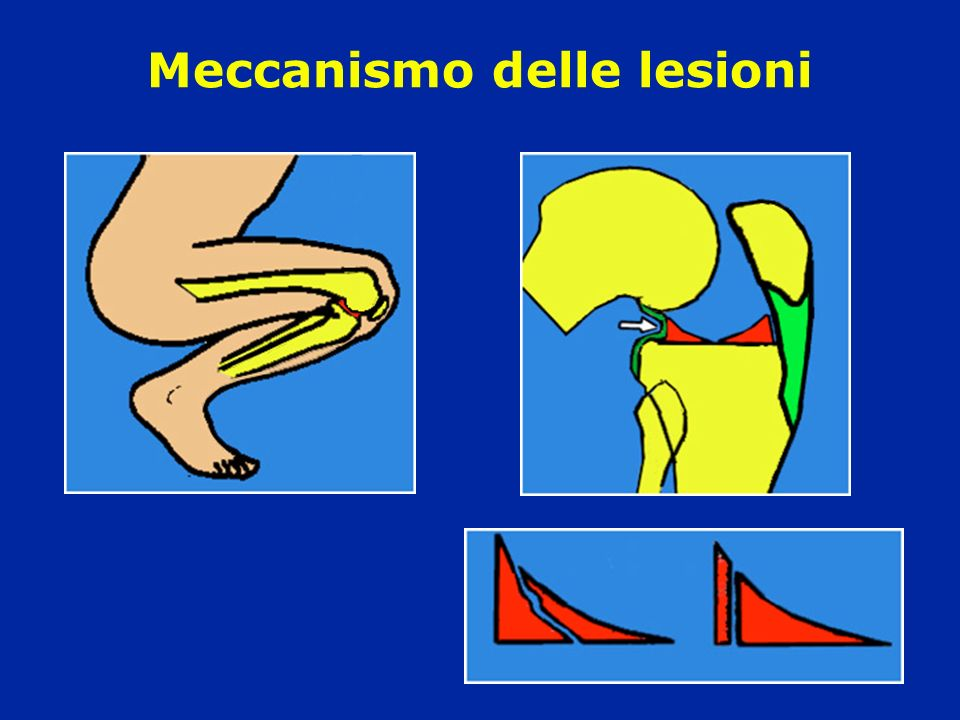 Meccanismo delle lesioni