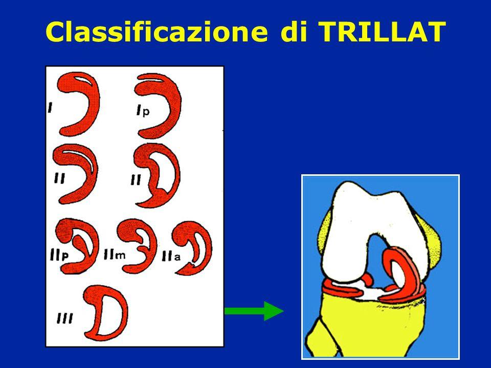 Classificazione di TRILLAT