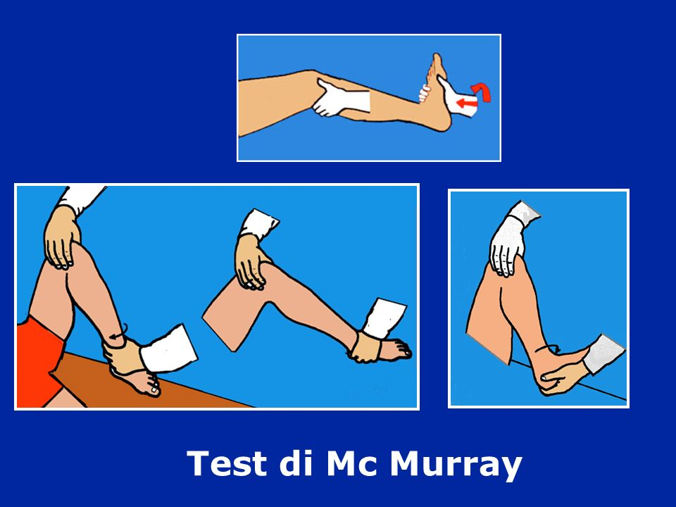 Test di Mc Murray