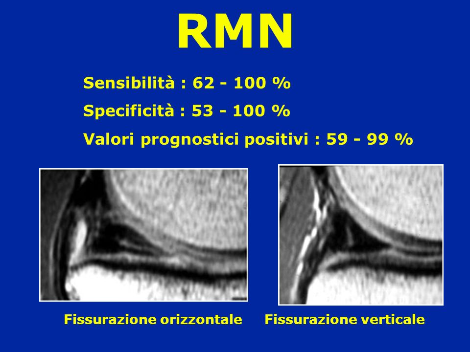 RMN Sensibilità : 62 - 100 % Specificità : 53 - 100 %