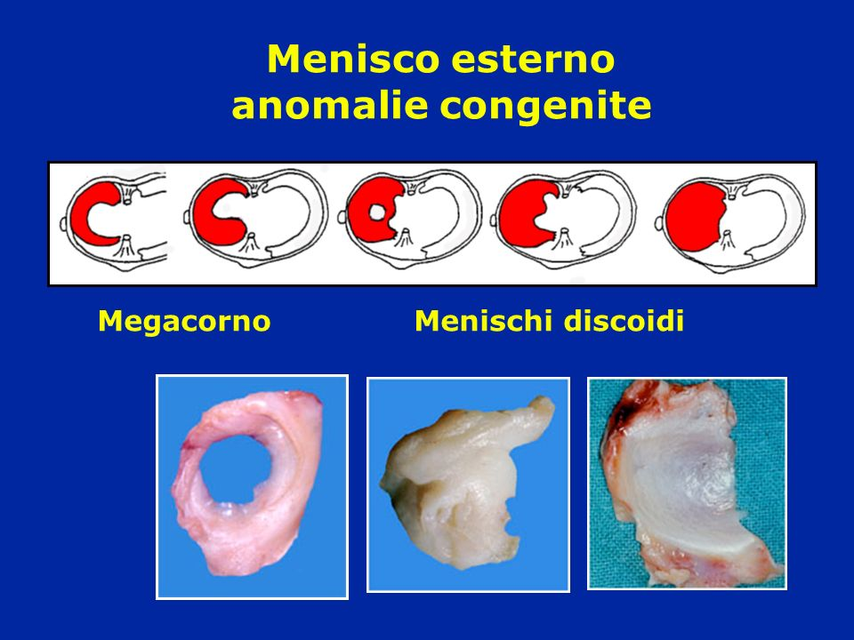Menisco esterno anomalie congenite