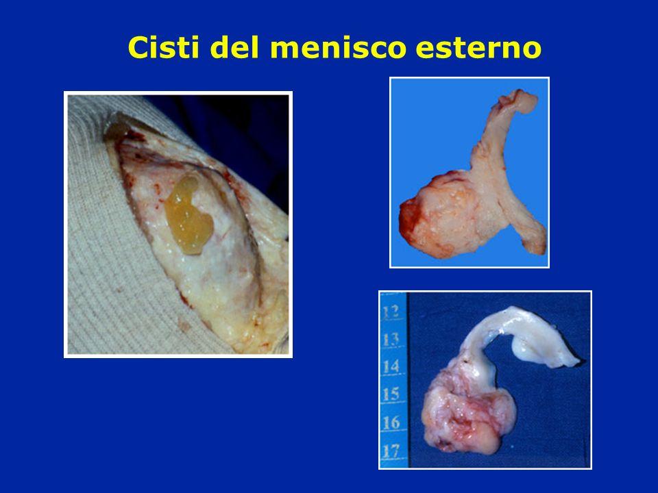Cisti del menisco esterno