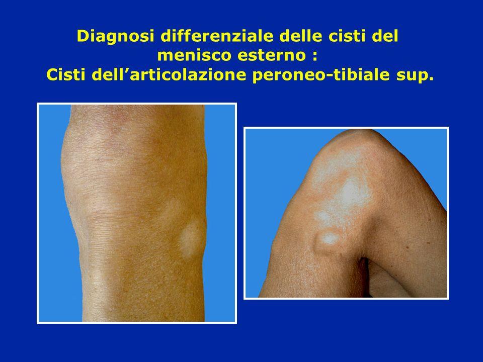 Diagnosi differenziale delle cisti del menisco esterno : Cisti dell'articolazione peroneo-tibiale sup.