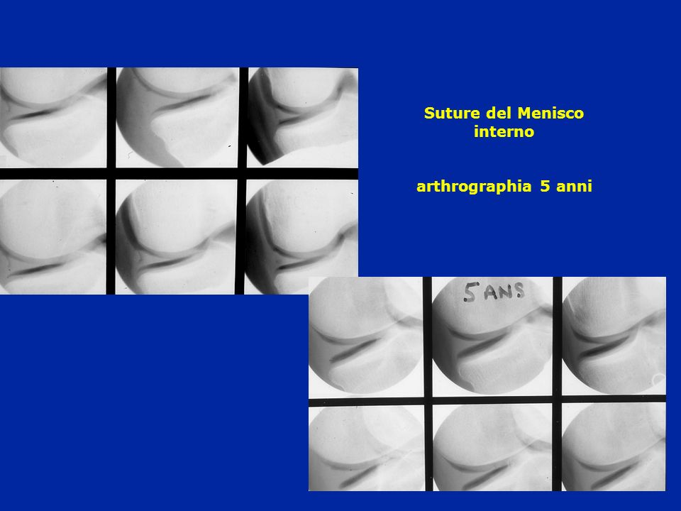 Suture del Menisco interno