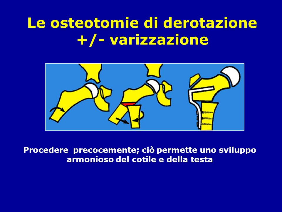 Le osteotomie di derotazione +/- varizzazione