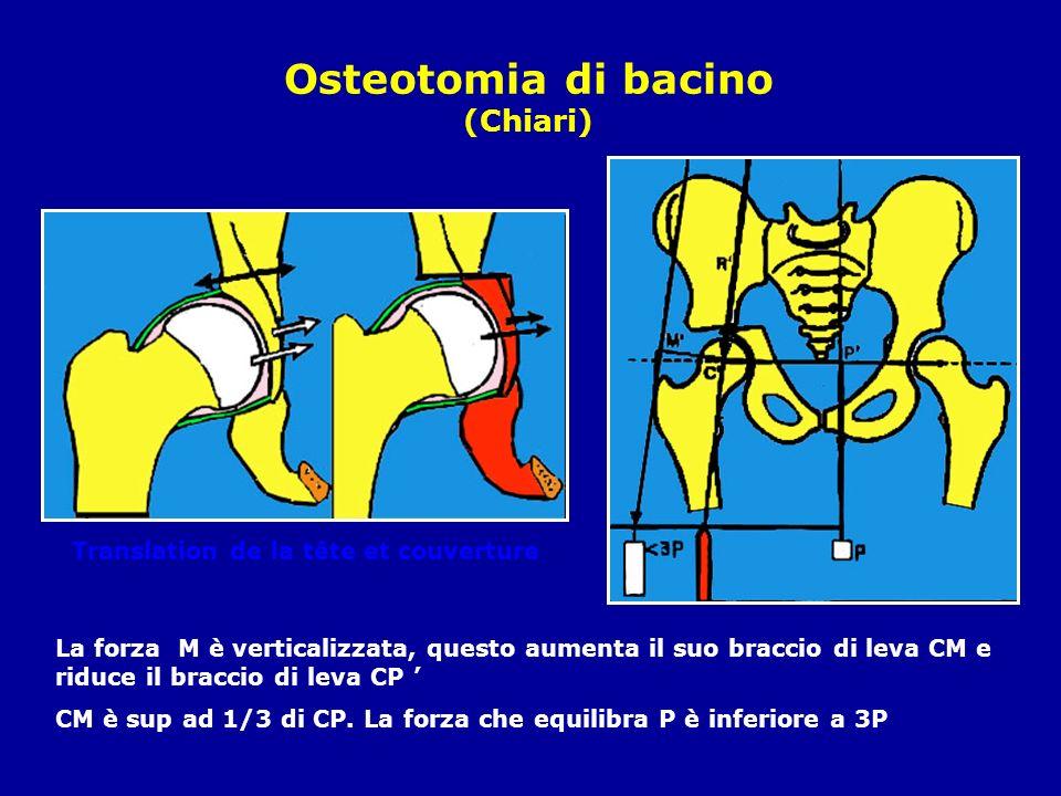 Osteotomia di bacino (Chiari)