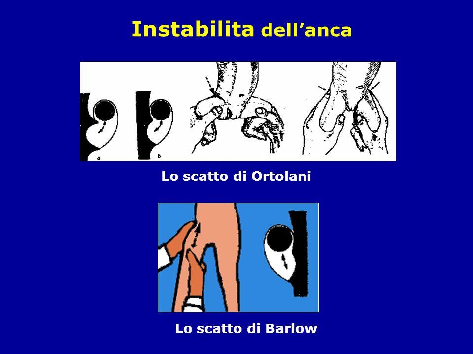Instabilita dell'anca