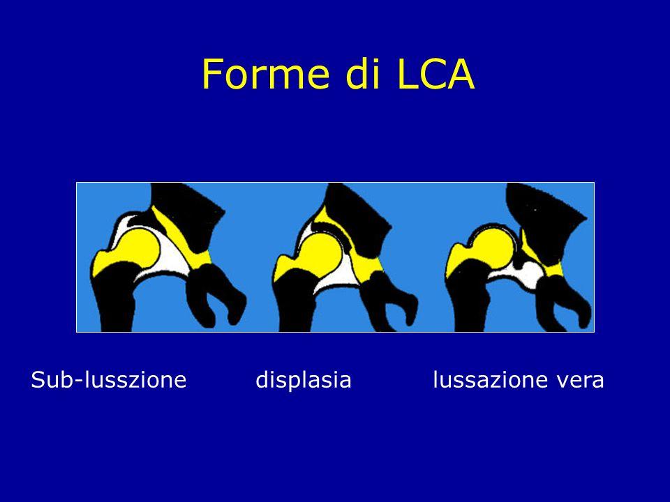 Forme di LCA Sub-lusszione displasia lussazione vera
