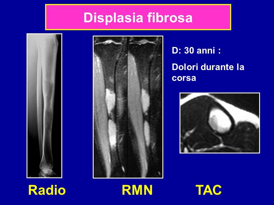 Displasia fibrosa D: 30 anni : Dolori durante la corsa Radio RMN TAC