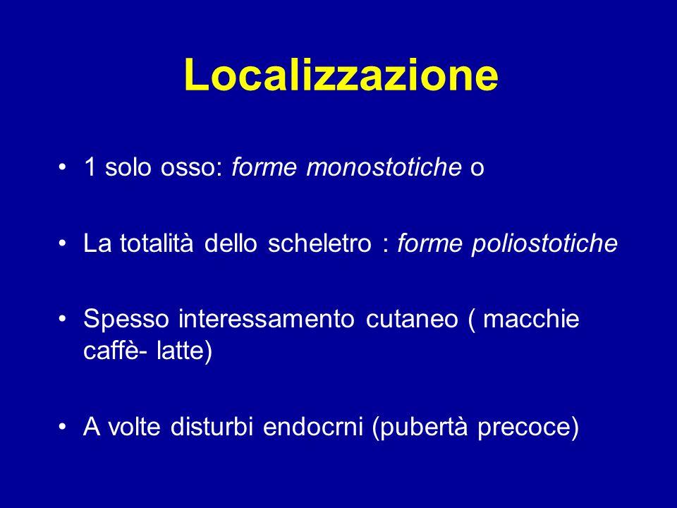 Localizzazione 1 solo osso: forme monostotiche o